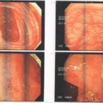 36歳女性 不妊症 強迫性障害 潰瘍性大腸炎