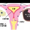 子宮内膜症の根本原因は内分泌かく乱物質と炎症とエストロゲン
